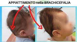 Questa immagine ritrae una brachicefalia posizionale del neonato, ossia un appiattimento posteriore della testa del bambino dovuto a un eccesso di tempo trascorso in posizione supina nei primi mesi di vita.