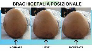 brachicefalia posizionale e testa piatta del neonato