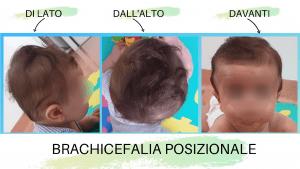 Conseguenze negative della testa piatta (plagiocefalia posizionale del neonato) sulla salute e il benessere del neonato.