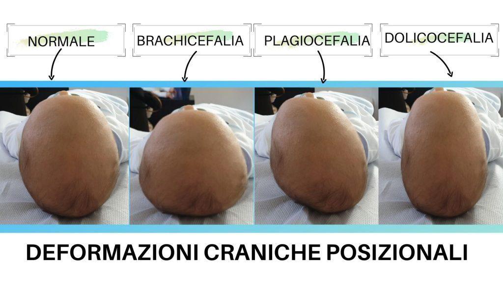 Le 3 tipologie di testa piatta del neonato, alias del termine corretto deformazioni craniche posizionali del neonato: brachicefalia posizionale, plagiocefalia posizionale, dolicocefalia posizionale.