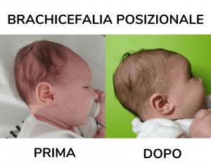 I miglioramenti di una brachicefalia posizionali grazie alle corrette raccomandazioni posturali per curare la testa piatta del neonato senza utilizzare il cuscino plagiocefalia