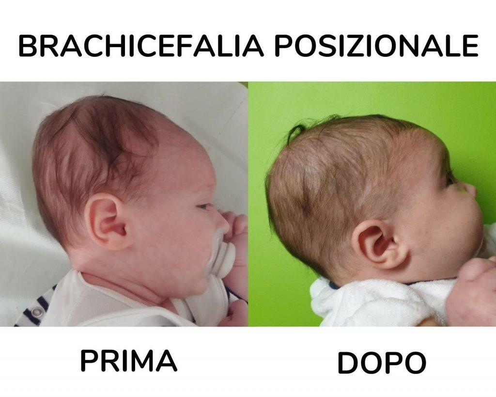 Come ho curato con successo la testa piatta (brachicefalia posizionale del neonato) grazie alla giuste raccomandazioni e ai trattamenti osteopatici