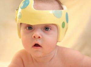 Il cuscino plagiocefalia funziona davvero?