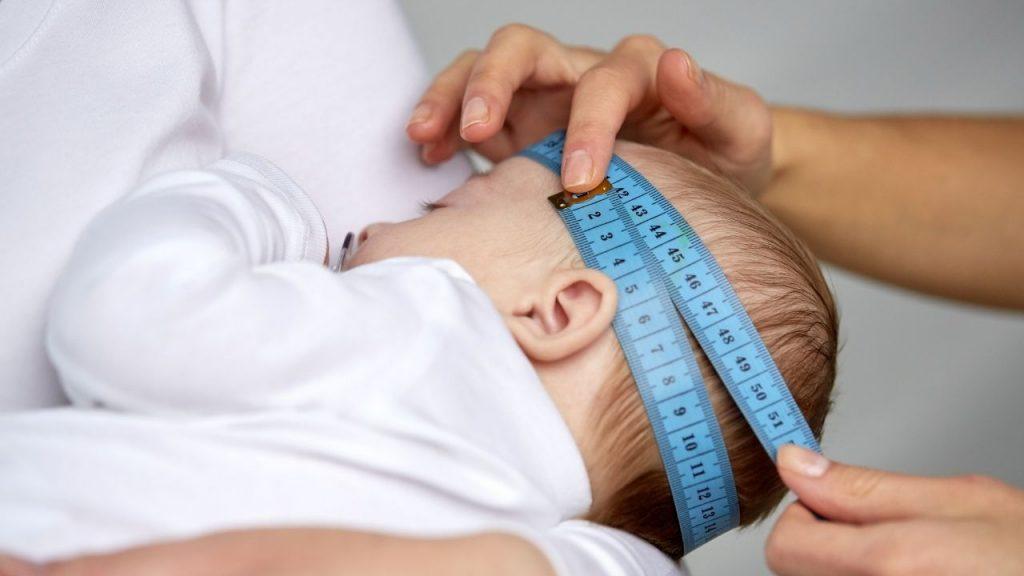 Conseguenze negative della testa piatta e plagiocefalia posizionale del neonato