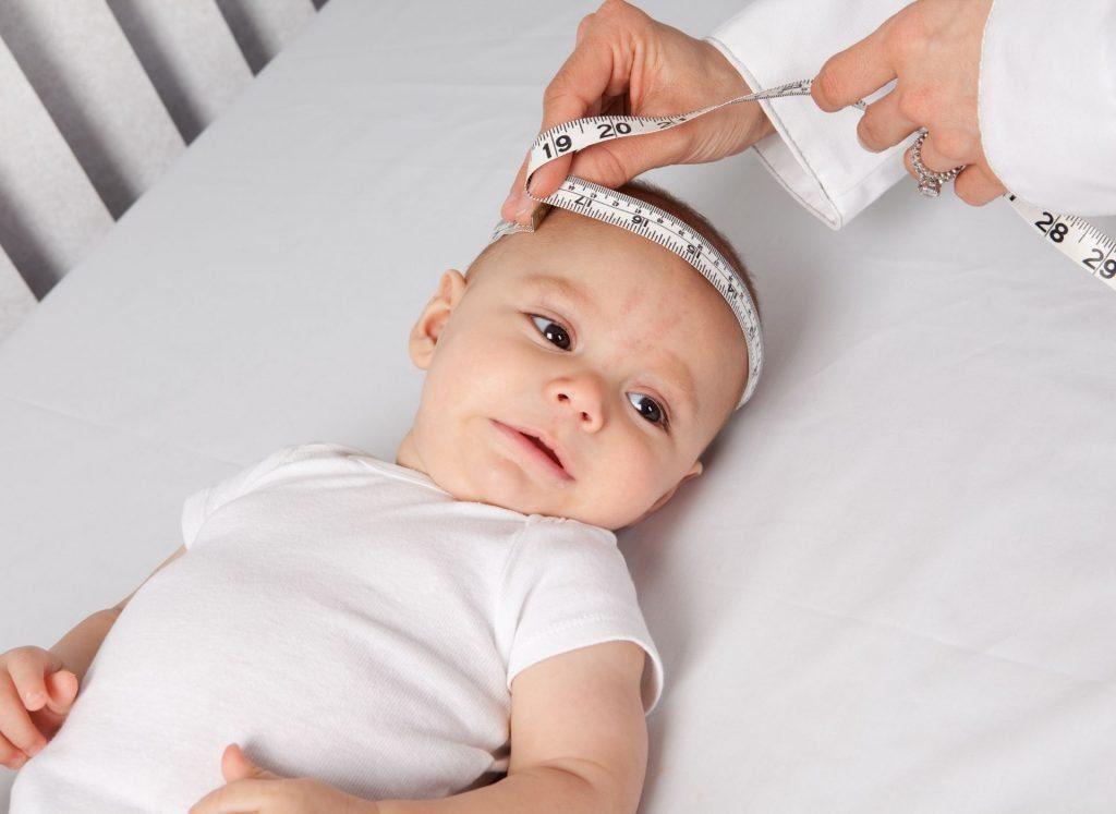 Come capire se la testa del bambino si è appiattita (plagiocefalia posizionale)